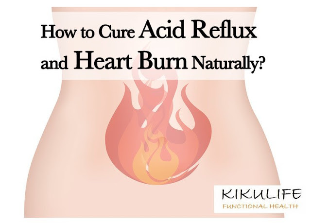 Acid Reflux: Causes & Cure