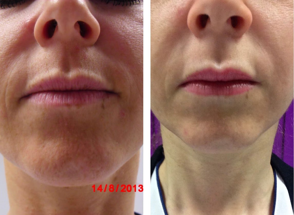 Before and after eight sessions of radio frequency with Lynton Promax