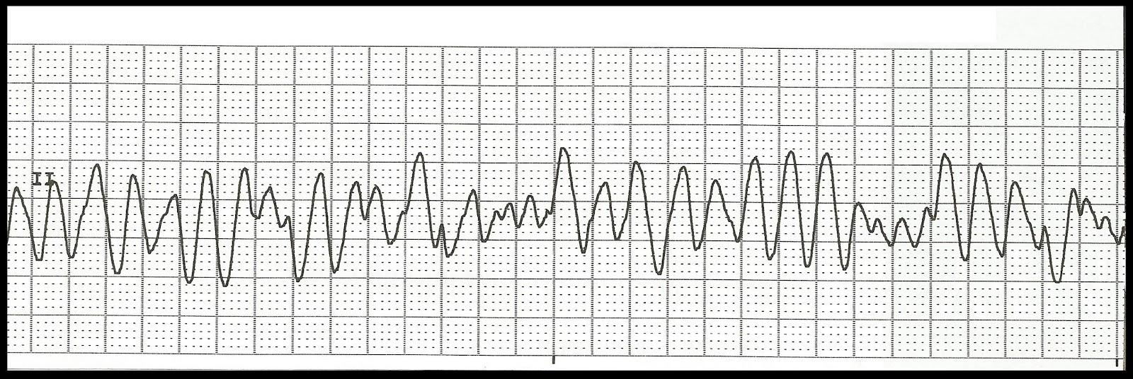 how to read cardiac strips