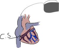 The biventricular lead positioned in the heart