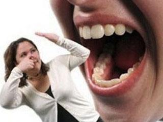 """""""Cara Mengatasi Bau Mulut"""""""