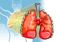 Identify early lung disease