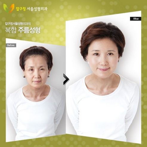 Korean Plastic Surgery, Before And After Photos