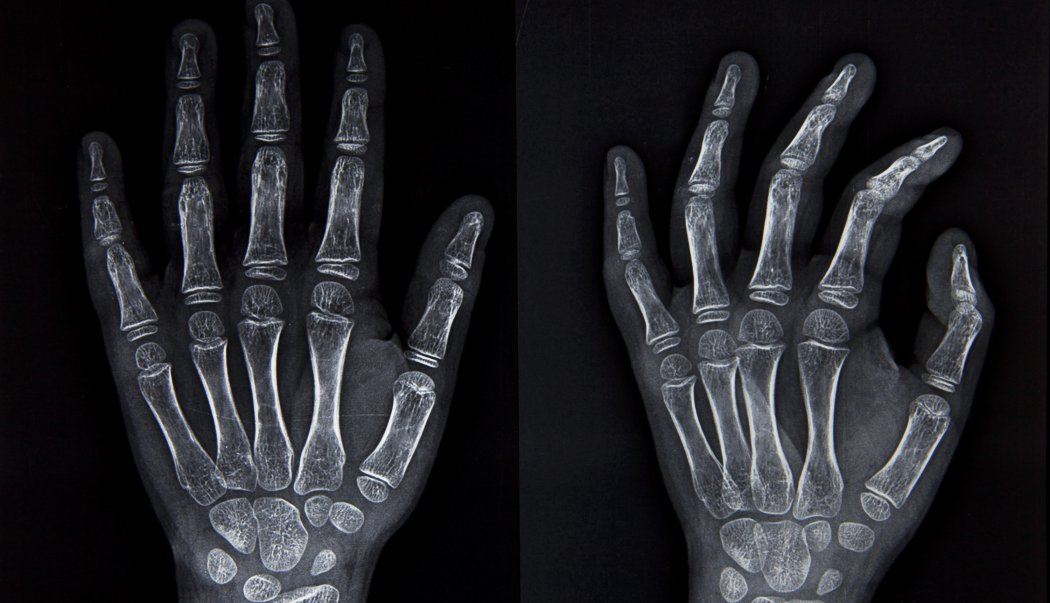 Huesos de las extremidades superiores e inferiores  Biologa