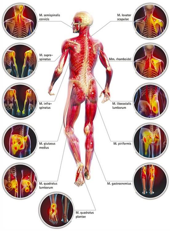 XanaNatura: Síndrome de dolor miofascial (SDM). Técnicas de Punción ...