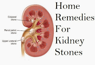 Pass Kidney Stones in Days With Home Remedies - A Look at Natural Health and Kidney Stones