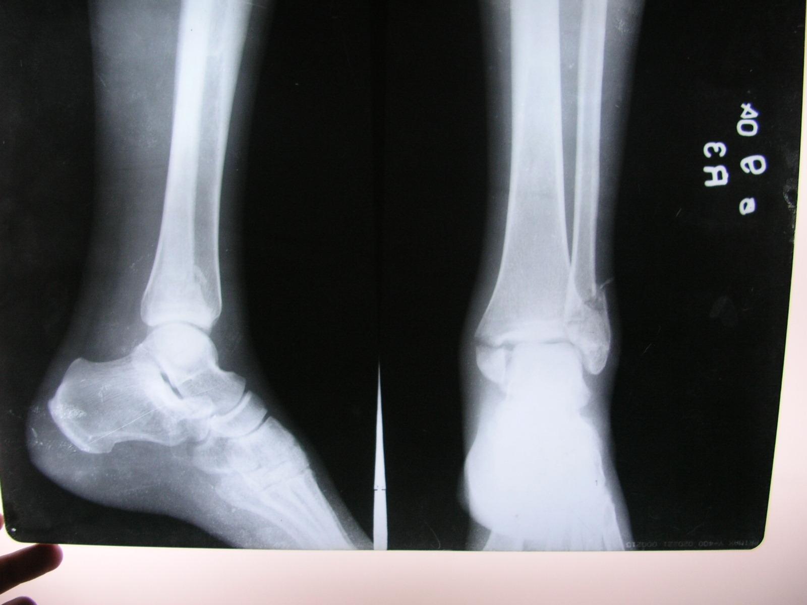 bi-malleolar fracture of tibia-3.bp.blogspot.com