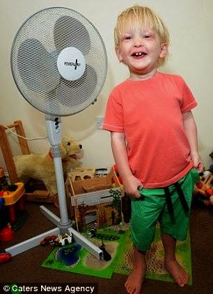 Budak Ini Akan Mati Sekiranya Dia Berpeluh Kerana Menderita Penyakit Anhidrotic Ectodermal Dysplasia