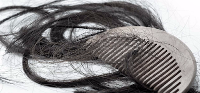 20 Effective Home Remedies And Tips To Control Hair Fall: