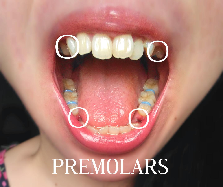 Light pink braces for teeth