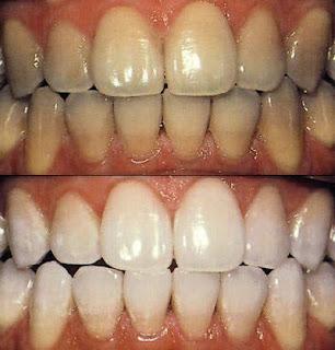 Cara Efektif Cepat Memutihkan Gigi Kuning Agar Berkilau Pro