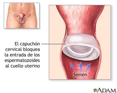 Métodos anticonceptivos de barrera:
