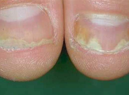 Patients with nail psoriasis applied indigo naturalis oil extract on affected nails twice daily for 24 weeks 2