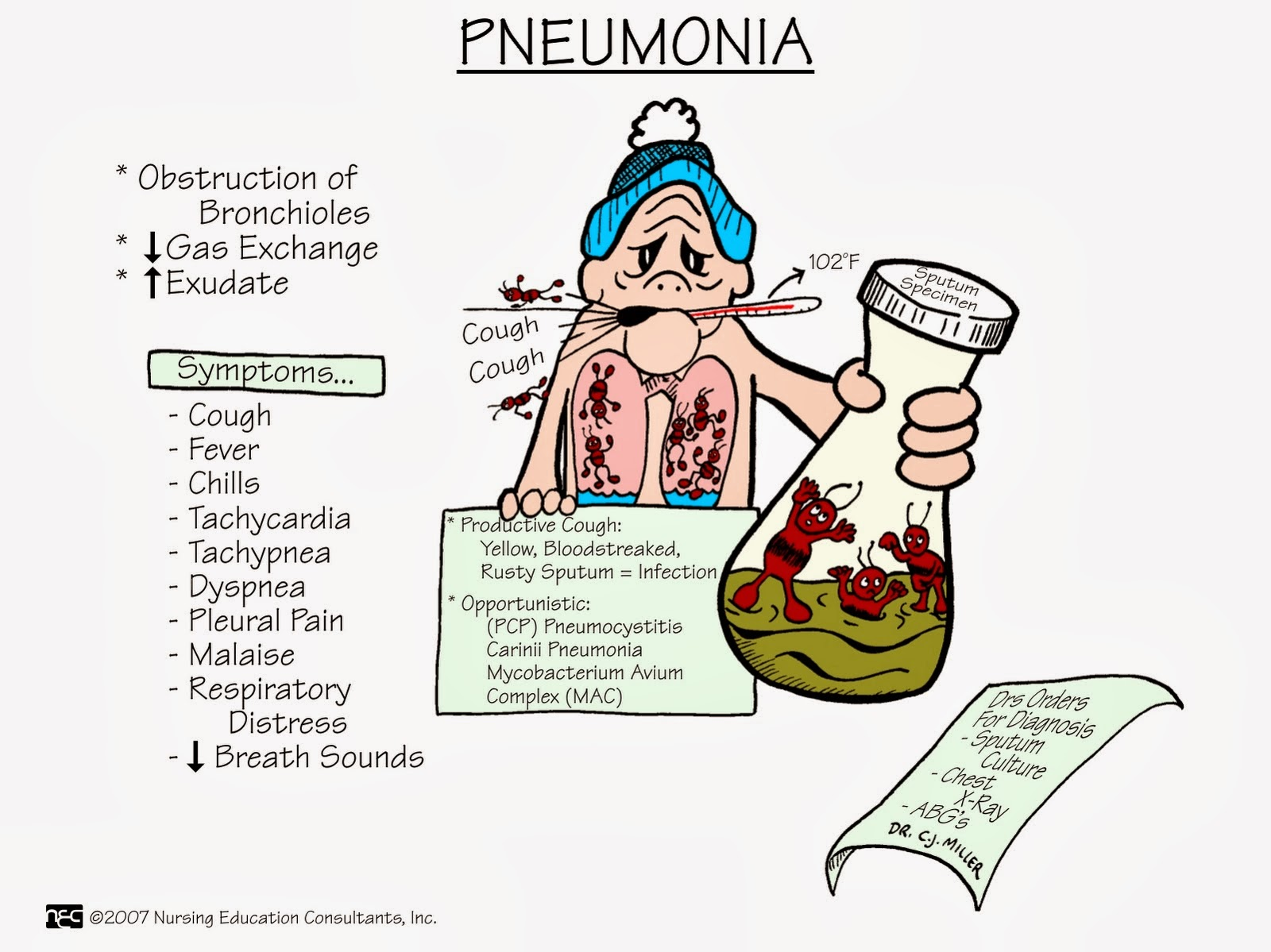 pneumonia notes Respiratory syncytial virus infection (rsv)  rsv is the most common cause of bronchiolitis and pneumonia in children younger than 1 year of age.
