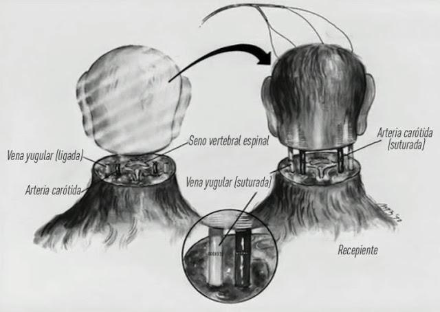 primer-trasplante-cabeza