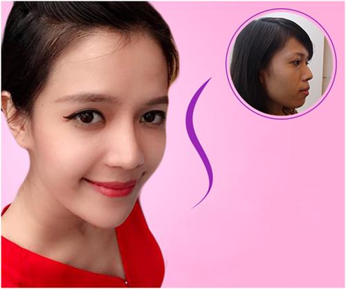 Giải đáp thắc mắc khi phẫu thuật thẩm mỹ nâng mũi – Bs. Nguyễn Phan Tú Dung