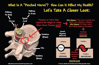 Hérnia de disco lombar (discopatia): tratamento com quiropraxia. a hérnia de disco resulta de disfunção entre a vértebra, o disco e a vértebra adjacente. Por devolver a função normal à articulação, o quiropraxista consegue tirar a compressão sobre o nervo, causada pela hérnia.Os resultados com a quiropraxia são rápidos, pois atuam diretamente nas unidades causadoras da queixa. Algumas vezes a utilização de antiinflamatórios receitados pelo médico pode ser necessário e otimizar a recuperação do paciente.