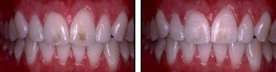 eliminar manchas dientes con microabrasion