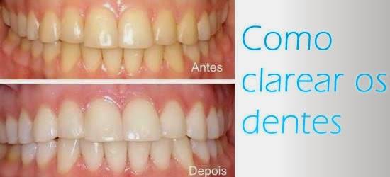 Receitas Perfeitas 5 Receitas Caseiras Para Clarear Os Dentes