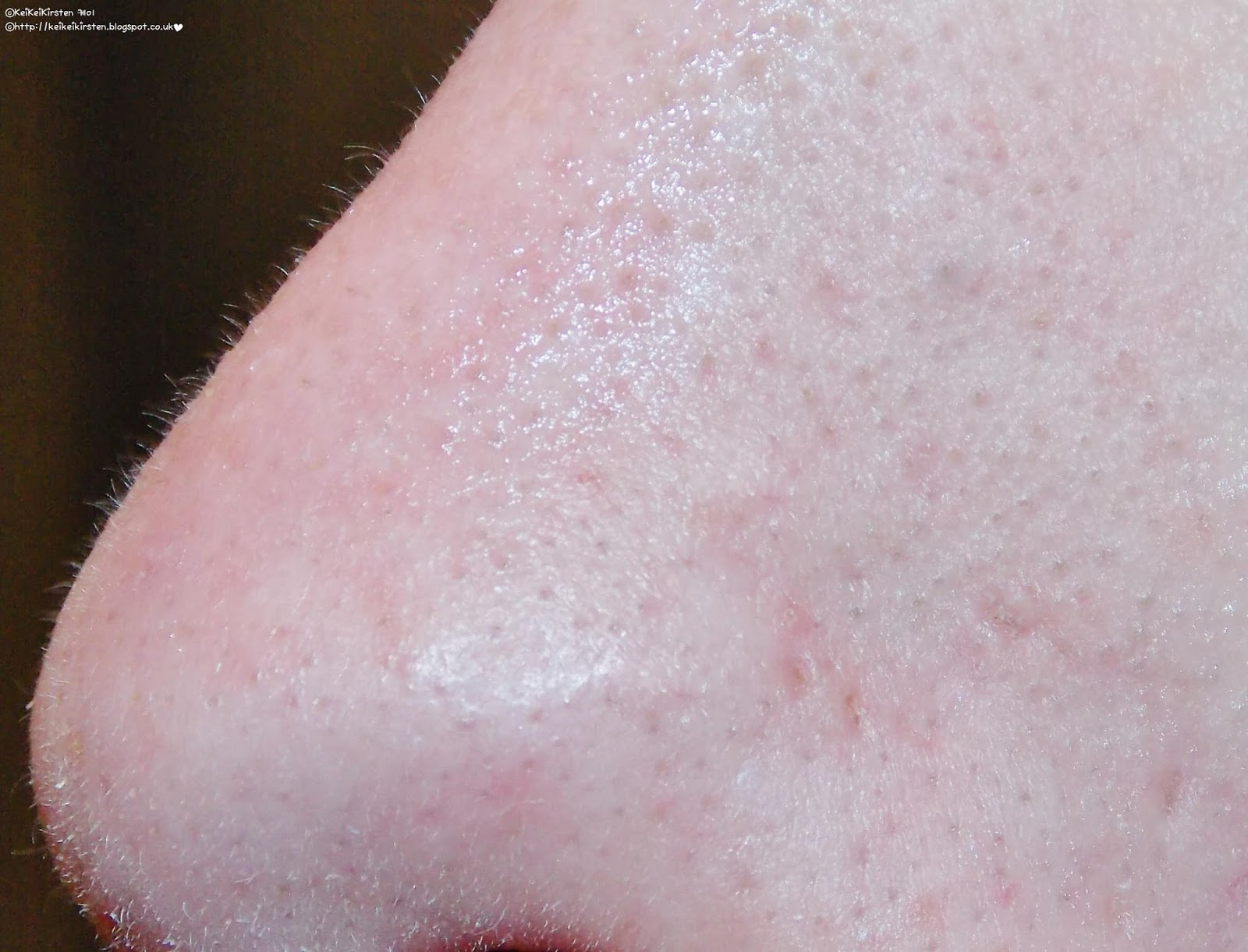 giant blackheads removal - photo #23