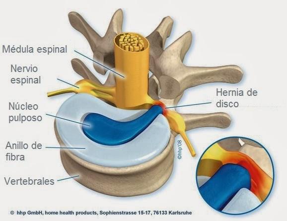 Disco herniado