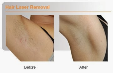 Laser-Hair-Removal-before-after