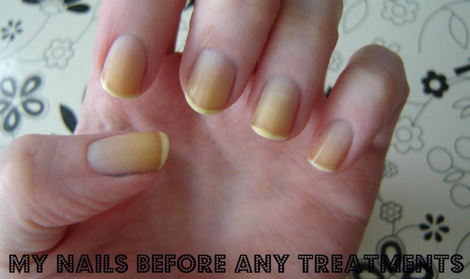How To Whiten Yellow Nails: Simple Home Remedies That Work! - MediMiss