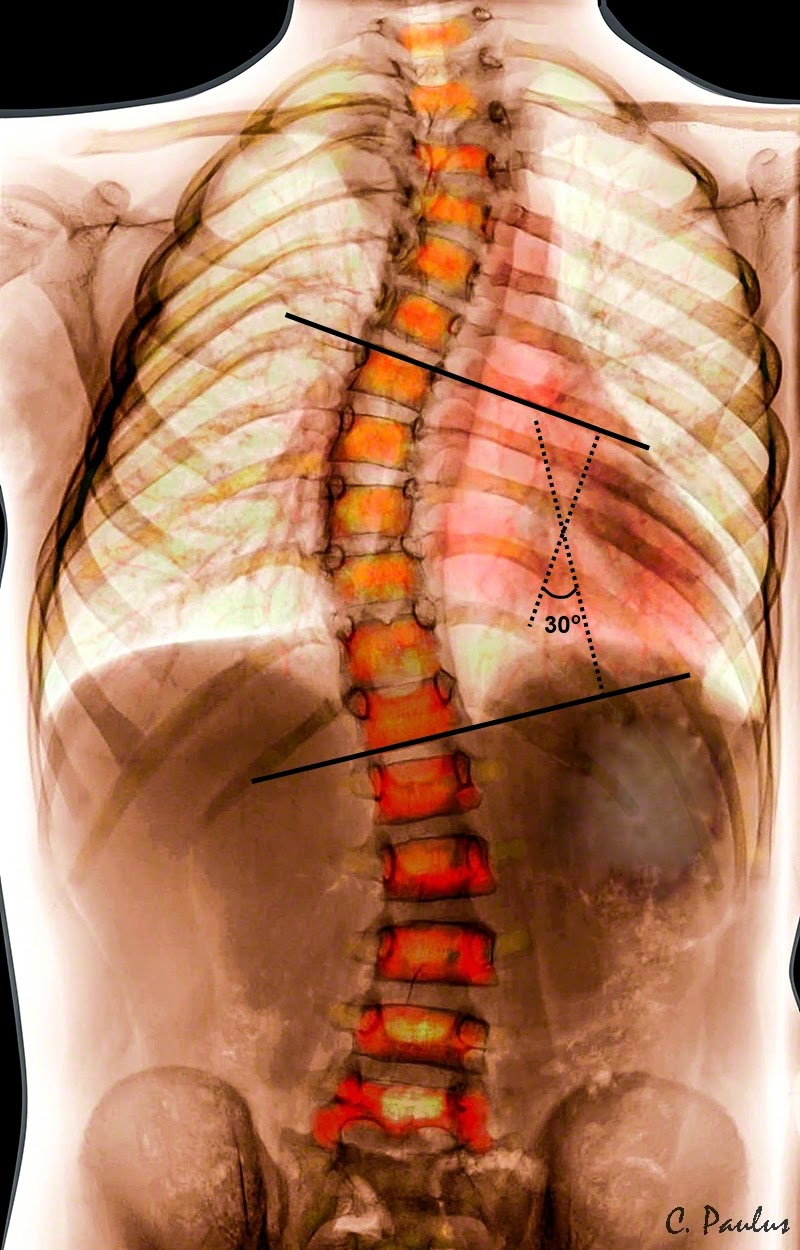 Color Scoliosis X-Ray with Cobb Angle Measurement