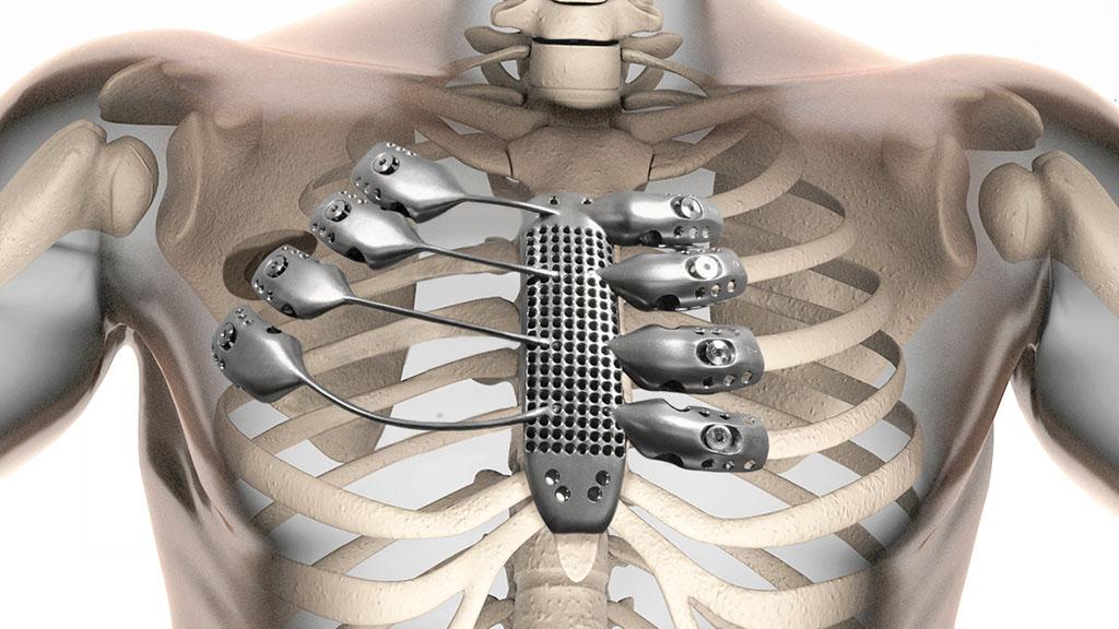 Aumentar um peito por meio da medicina