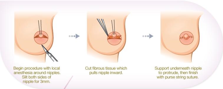 BK Plastic Surgery: BK Plastic Surgery Breast surgery ...