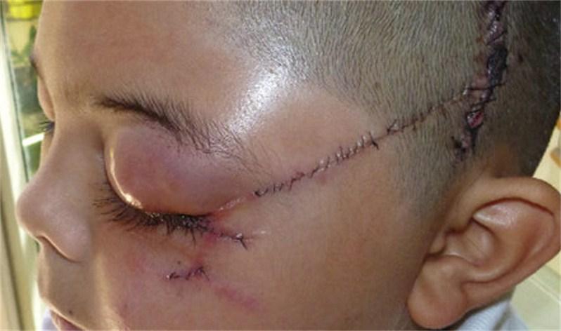 Facial Wounds 39