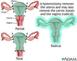 ta bort äggstockar och livmoder