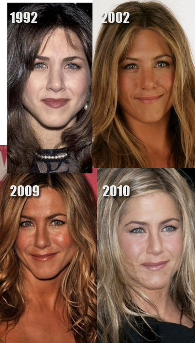 Jennifer Aniston Before And Now Nose