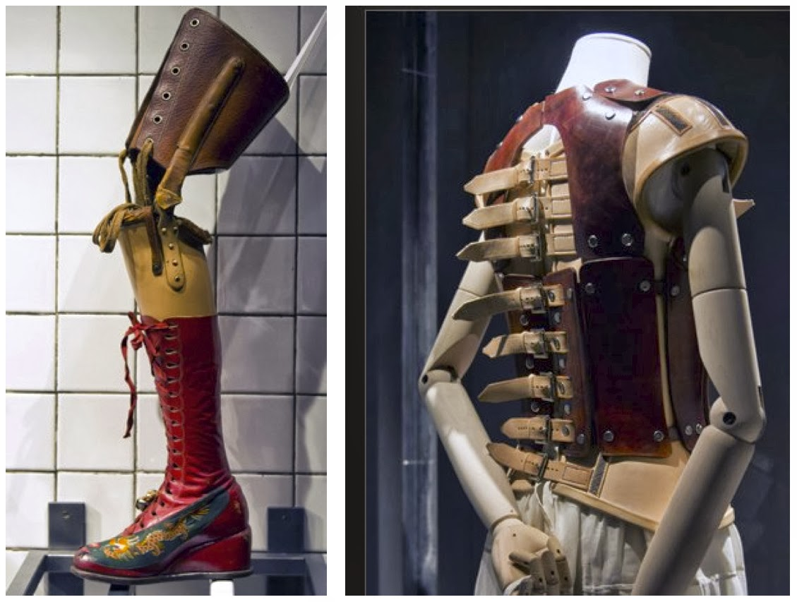 old fashioned prosthetic leg with ornate boot and back brace made of leather and multiple buckles