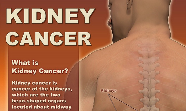 Image: Kidney Cancer #infographic
