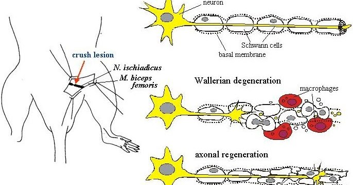 regeneration of neurons Neurons have little regeneration capacity so any damage is likely to be permanentany destroyed neurons are permanently lost the cns has no ability to repair damage the neuroglial cells.