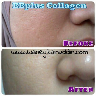 BB plus collagen testimonial - Sblm guna BBplus, tekstur kulit kasar,  byk parut jerawat, kulit berminyak,  kelihatan tidak bermaya.  Selepas 2 minggu, parut jerawat semakin pudar,  kulit semakin cerah,