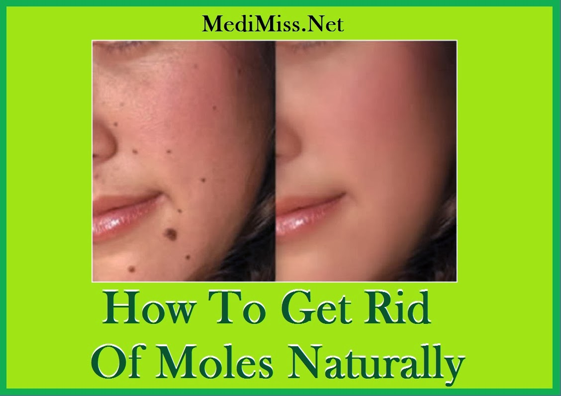How To Get Rid Of Moles Naturally Medimiss