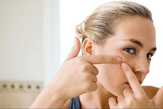 6 Cara Menghilangkan Komedo Putih Di Hidung Secara Permanen Dengan Lidah Buaya
