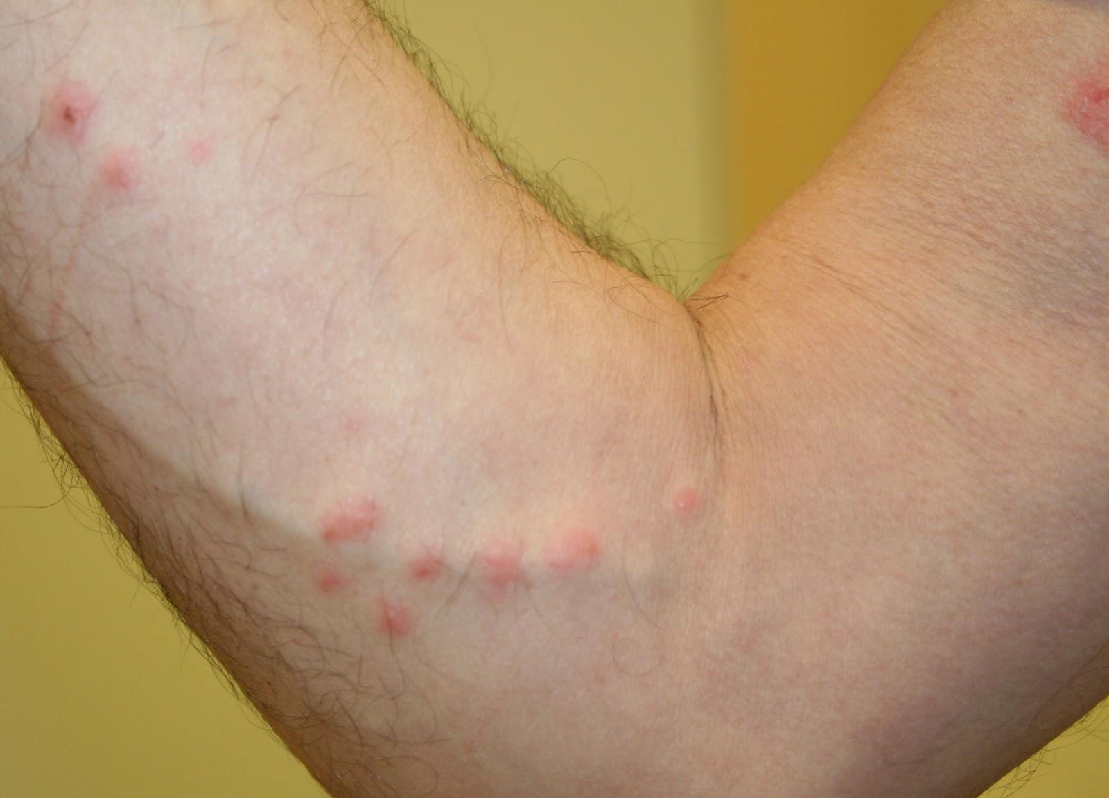 Linear bug bites - Doctor answers on HealthcareMagic