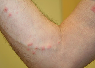 Can Stress Cause Hives Skin : Why Employing Skeletal Muscle Relaxants_