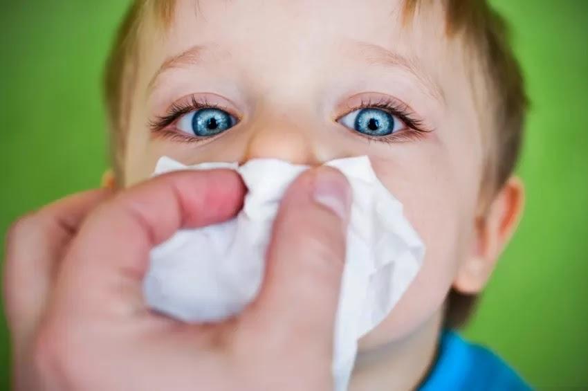 Gejala Alergi pada Anak