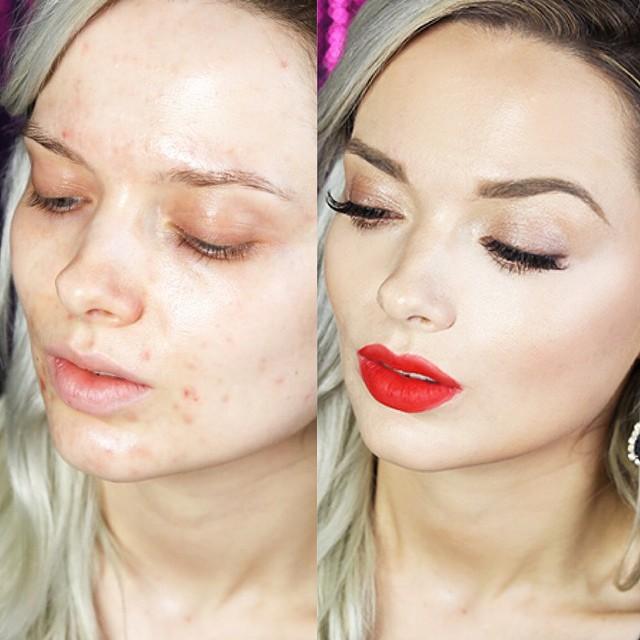 La crème des cicatrices des acnés