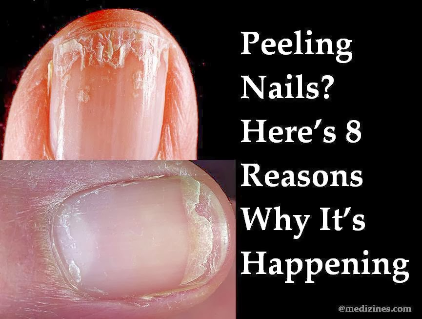 Skin Peeling – What It Is, Causes, And Treatments photo