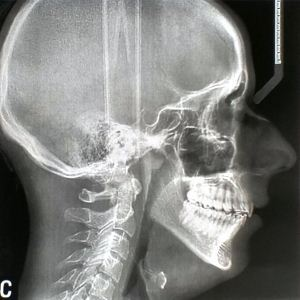 X-ray pada hidung