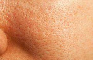 penyebab pori-pori besar pada wajah