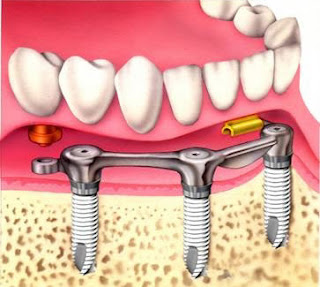 WizDent: DENTAL IMPLANTS PART I