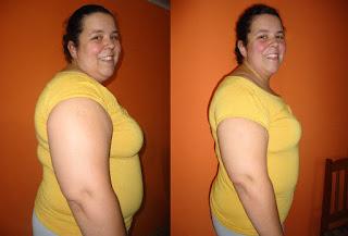suziane burguêz proença cirurgia bariátrica obesidade gastroplastia antes depois