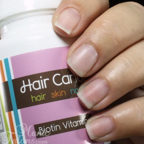 Hair Candy Vitamins Nail Progress Week 3