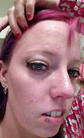 tca peel flaking skin face pink hair liprings